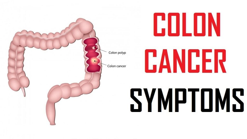 5 Warning Signs Of Colon Cancer You Shouldn T Ignore Healthy Habits